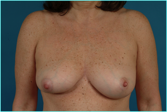 Flap-based breast reconstruction - LDMF before 867528