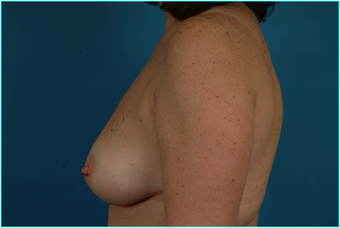 Flap-based breast reconstruction - LDMF 867528