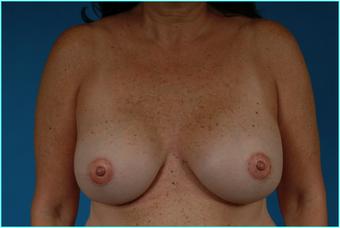 Flap-based breast reconstruction - LDMF after 867528
