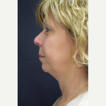 55-64 year old woman treated with Ultherapy before 3376351