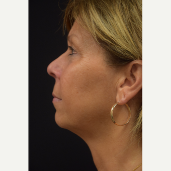 55-64 year old woman treated with Ultherapy after 3376351