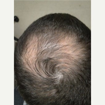 25-34 year old man treated with Hair Loss Treatment before 2225273