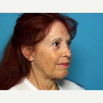 65-74 year old woman treated with Facelift 1716036