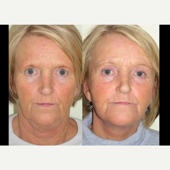 65-74 year old woman treated with Facelift before 3602550