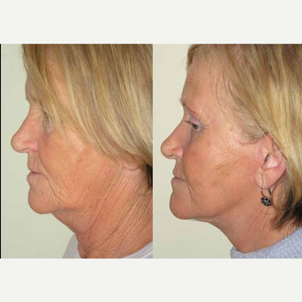 65-74 year old woman treated with Facelift after 3602550