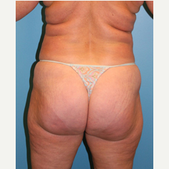 56 year old woman treated with Liposuction before 3582406