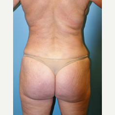 56 year old woman treated with Liposuction after 3582406