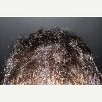 PRP for Hair Loss after 2459599