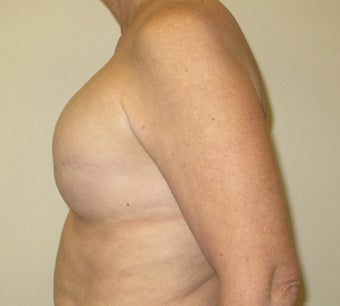 Breast Reconstruction 735303