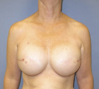 Breast Reconstruction after 735303