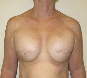 Breast Reconstruction before 735303