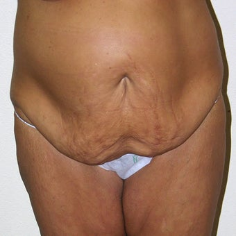 Tummy Tuck before 313230