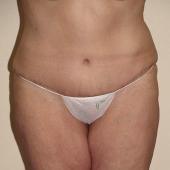 Tummy Tuck after 313230