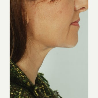 47 year old woman with loose neck skin