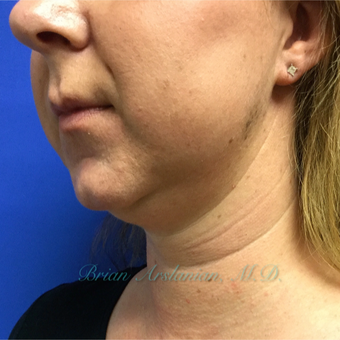 35-44 year old woman treated with Kybella treatment for double chin before 3151942