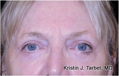 65-74 year old woman treated with Eyelid Retraction Repair after 3524580
