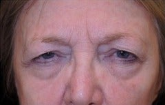 65-74 year old woman treated with Eyelid Retraction Repair before 3524580