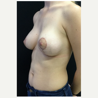 18-24 year old woman treated with Breast Lift with Implants after 3219326