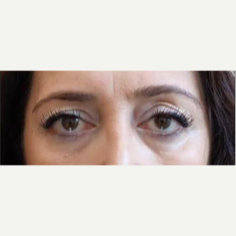 Minimum invasive Brow Lift and Upper Blepharoplasty before 2091849