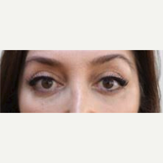 Minimum invasive Brow Lift and Upper Blepharoplasty after 2091849