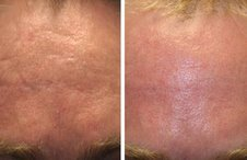 Before and after Acne Scar Removal with Laser before 1094077