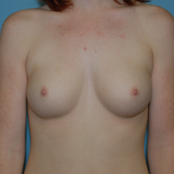 18-24 year old woman treated with Breast Augmentation before 3061848