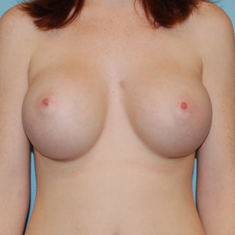 18-24 year old woman treated with Breast Augmentation after 3061848
