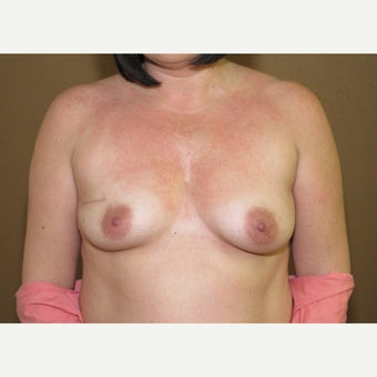 45-54 year old woman treated with Breast Reconstruction before 1606209