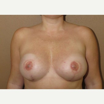 45-54 year old woman treated with Breast Reconstruction after 1606209
