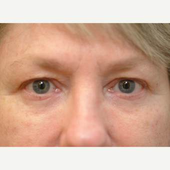 58year old woman treated with Eyelid Surgery before 3611377