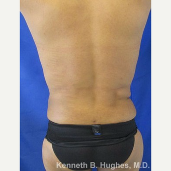 Liposuction Revision after 3164387