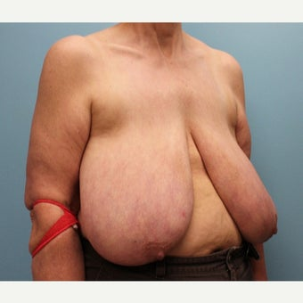 55-64 year old woman treated with Breast Reduction before 2659180