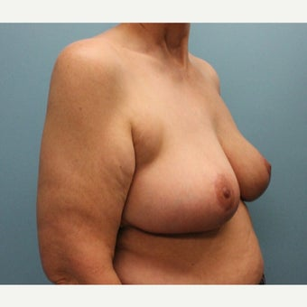 55-64 year old woman treated with Breast Reduction after 2659180