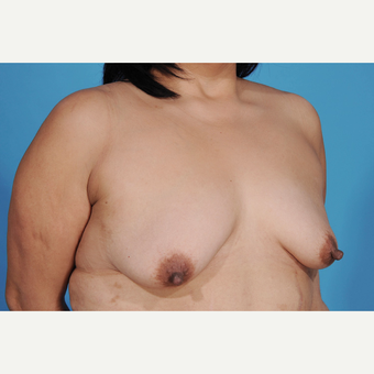 35-44 year old woman treated with Breast Lift with Implants before 3777240