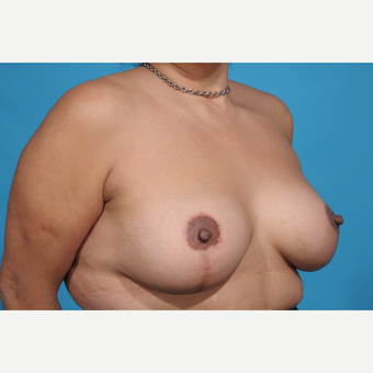 35-44 year old woman treated with Breast Lift with Implants after 3777240