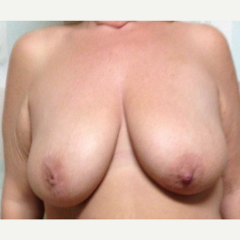 Breast Lift for this 45 Year Old Woman before 3092624