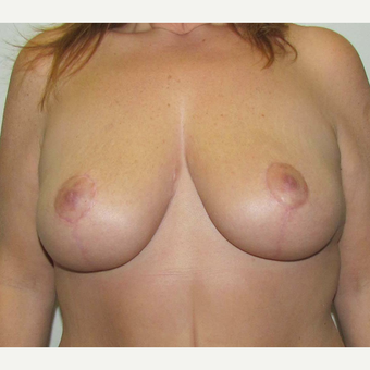Breast Lift for this 45 Year Old Woman after 3092624