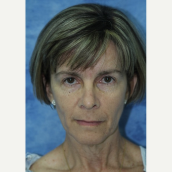 45-54 year old woman treated with Fat Transfer to face and neck lift before 3177840