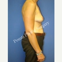 45-54 year old woman treated with Breast Implant Removal 1588296