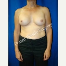 45-54 year old woman treated with Breast Implant Removal before 1588296