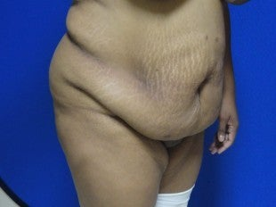Tummy Tuck for 40 Year Old Patient 977317