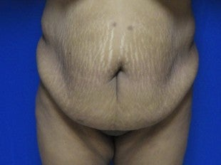 Tummy Tuck for 40 Year Old Patient