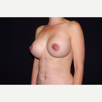 35-44 year old woman treated with Breast Implant Revision after 2998882