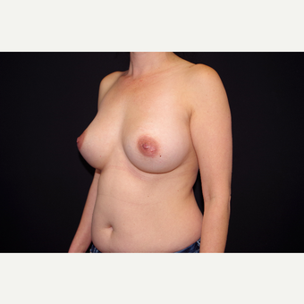 35-44 year old woman treated with Breast Implant Revision before 2998882