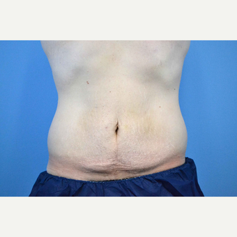 25-34 year old man treated with Body Lift before 3280621