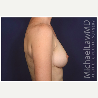 35-44 year old woman treated with Breast Lift after 3103510