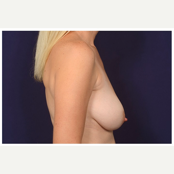 35-44 year old woman treated with Breast Lift before 3103510