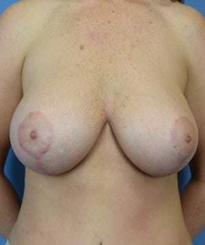 35-44 year old woman treated with Breast Augmentation after 3529429