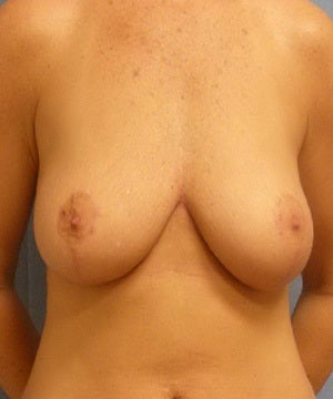35-44 year old woman treated with Breast Augmentation before 3529429