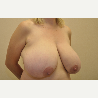 35-44 year old woman treated with Breast Reduction before 3103160